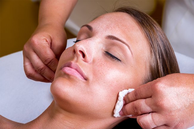 All About Chemical Peels