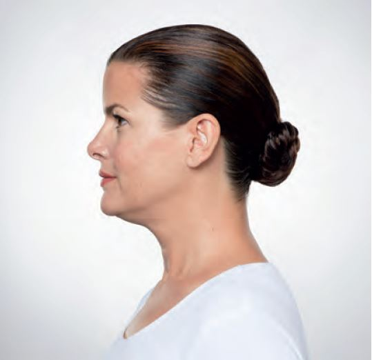 What is Kybella?