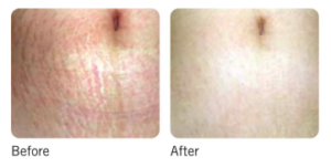 Micro-Needling before and after